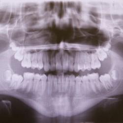 Röntgenbild, gerönchtes Gebiss, Panoramafoto